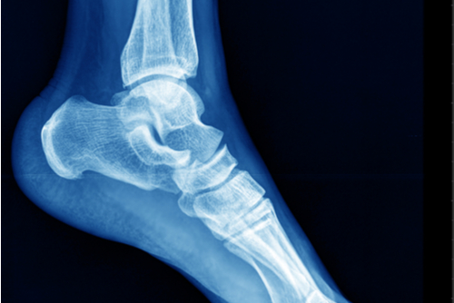Blue x-ray of foot and ankle.